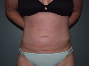 Liposuction Case 7 - Front Torso After