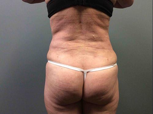 Liposuction Case 7 - Back Torso Before