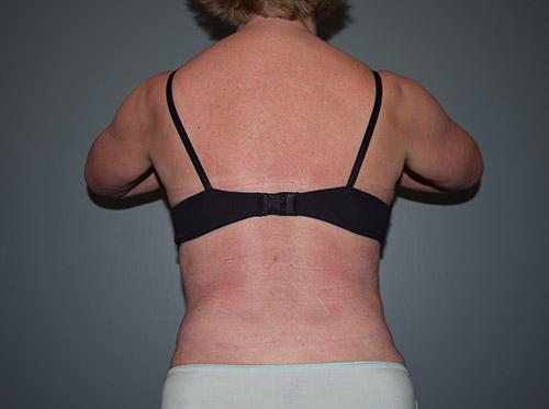 Liposuction Case 7 - Back Torso After