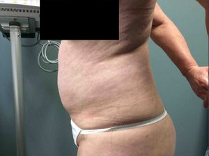 Liposuction Case 7 - Left Torso Before