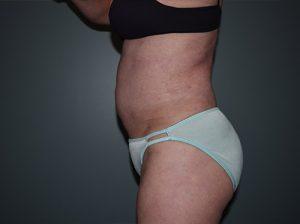 Liposuction Case 7 - Left Torso After
