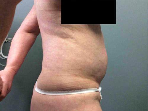 Liposuction Case 7 - Right Torso Before