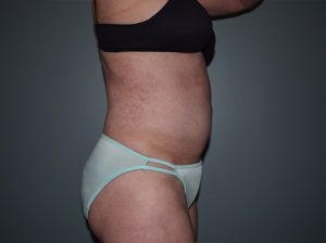 Liposuction Case 7 - Right Torso After