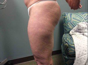 Liposuction Case 7 - Left Legs Before
