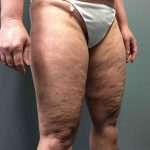 Liposuction Case 7 - Right Legs Before