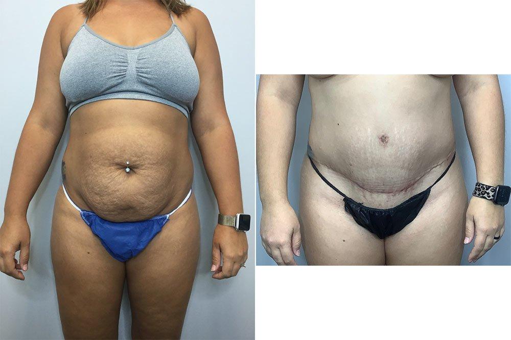 Abdominoplasty Case 10660-1