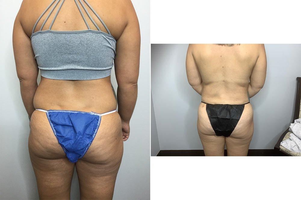 Abdominoplasty Case 10660-2
