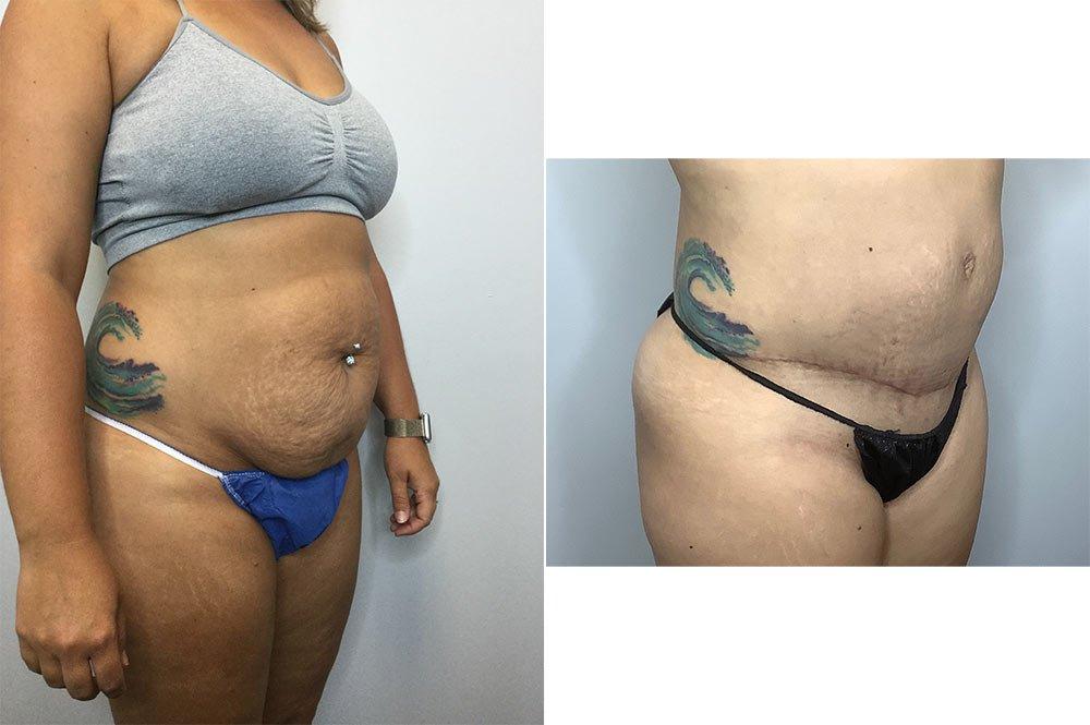 Abdominoplasty Case 10660-5