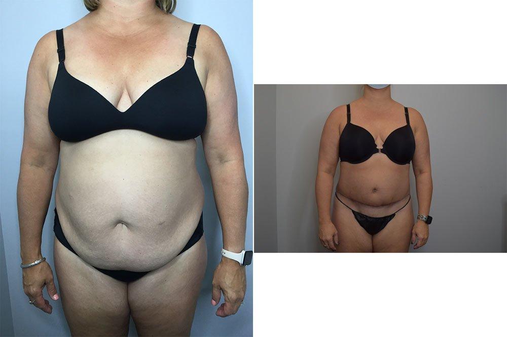 Abdominoplasty Case 10737-1