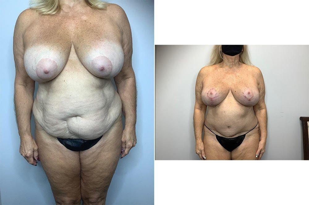 Abdominoplasty Case 4006-1