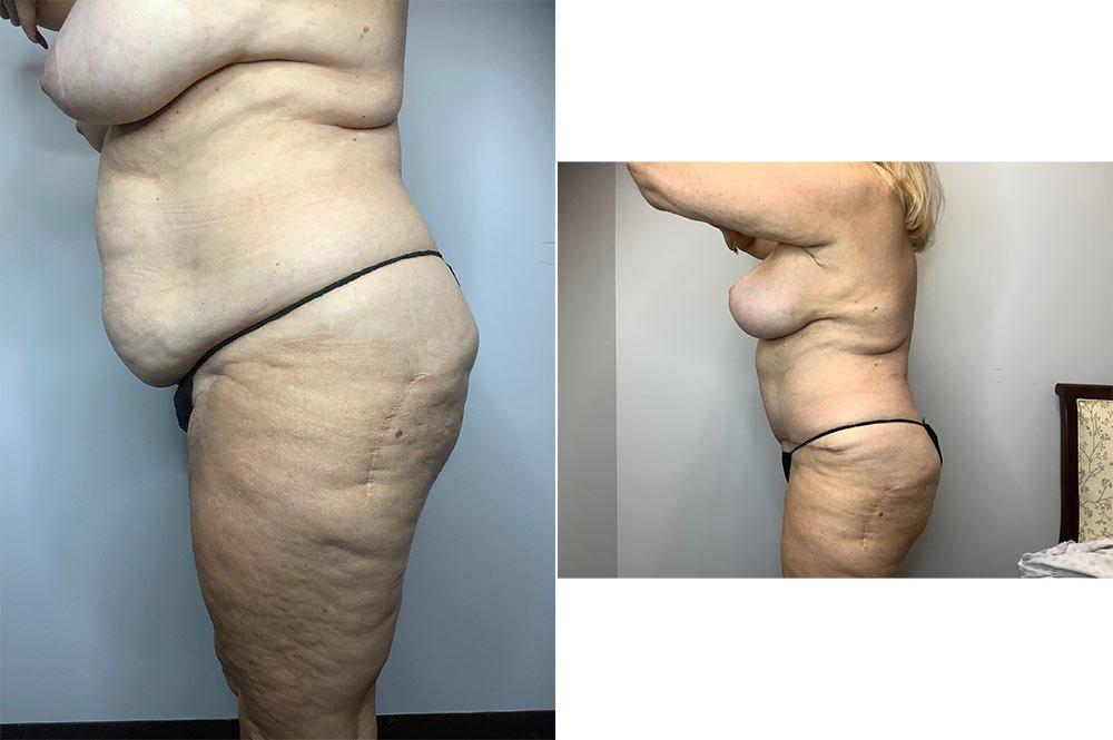 Abdominoplasty Case 4006-2