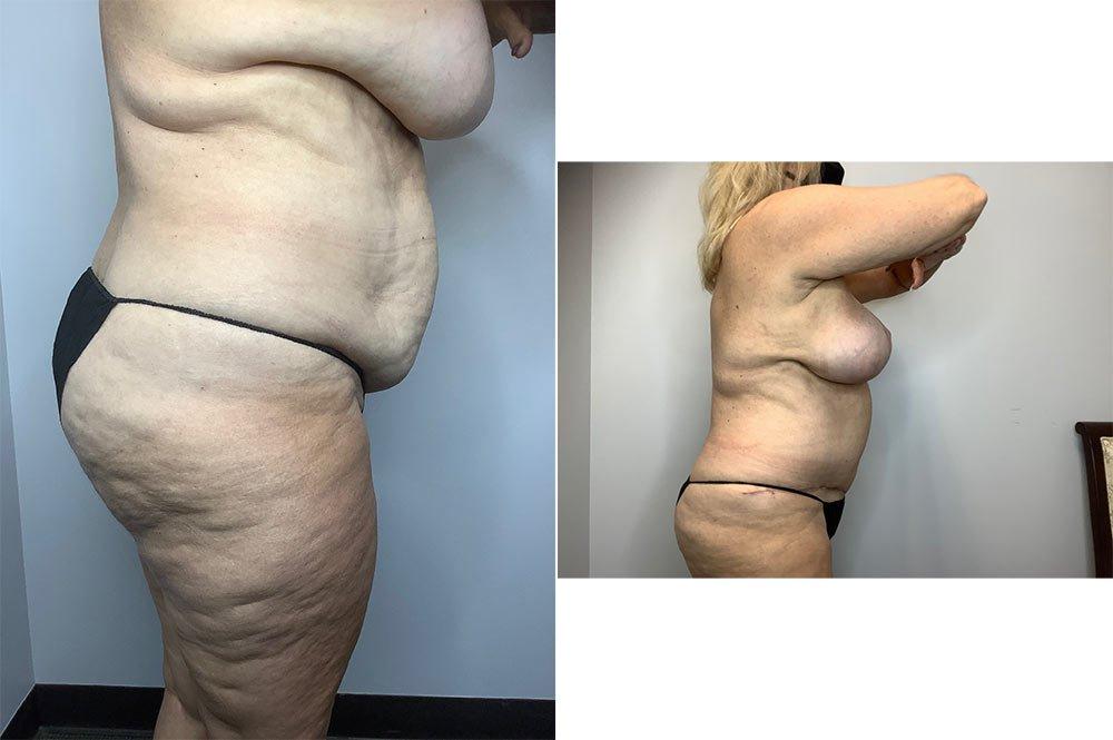 Abdominoplasty Case 4006-3