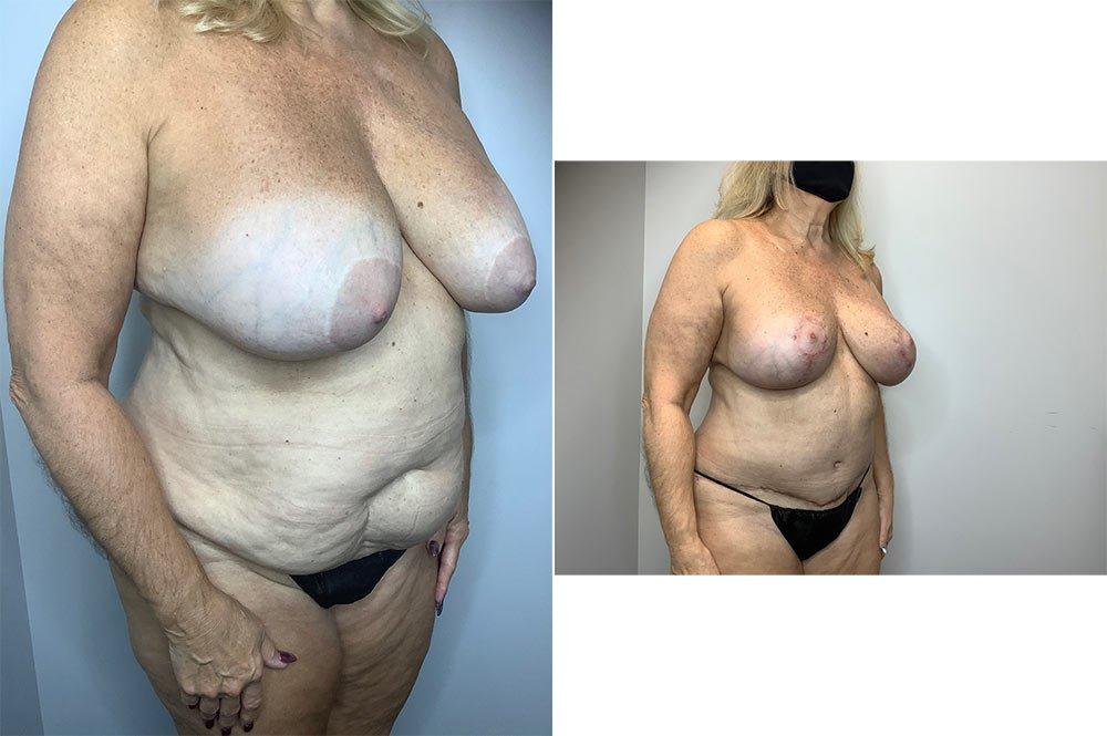 Abdominoplasty Case 4006-4
