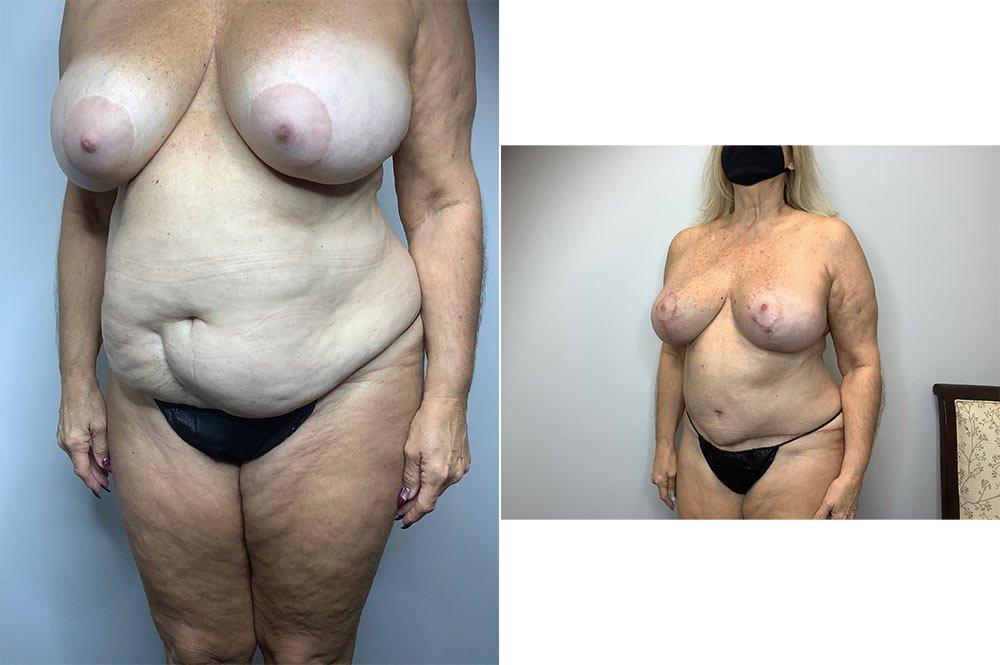 Abdominoplasty Case 4006-5