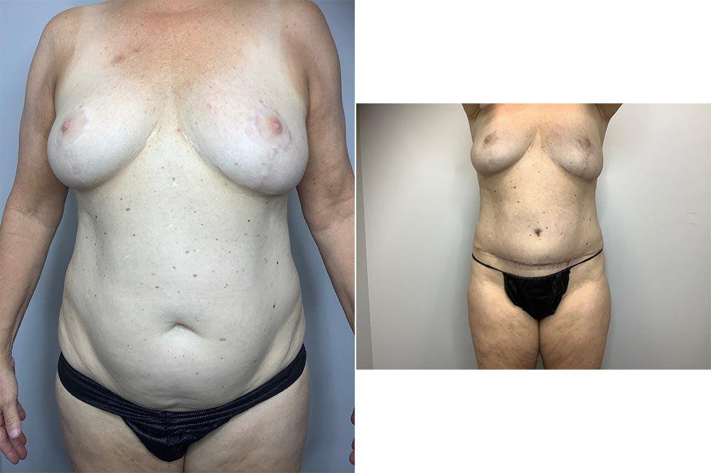 Abdominoplasty Case 4055-1