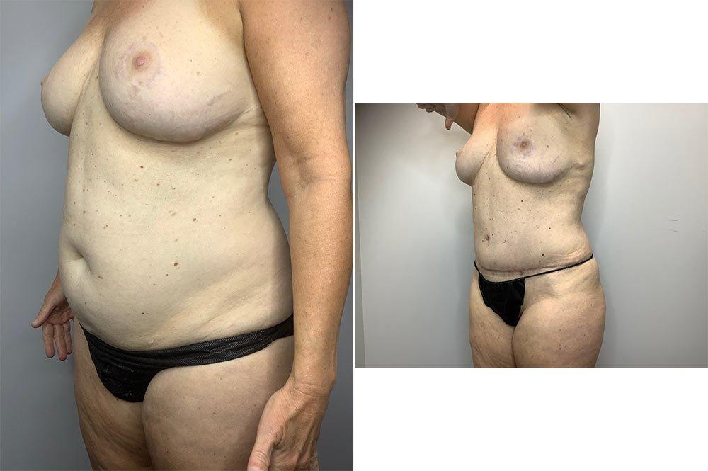Abdominoplasty Case 4055-2