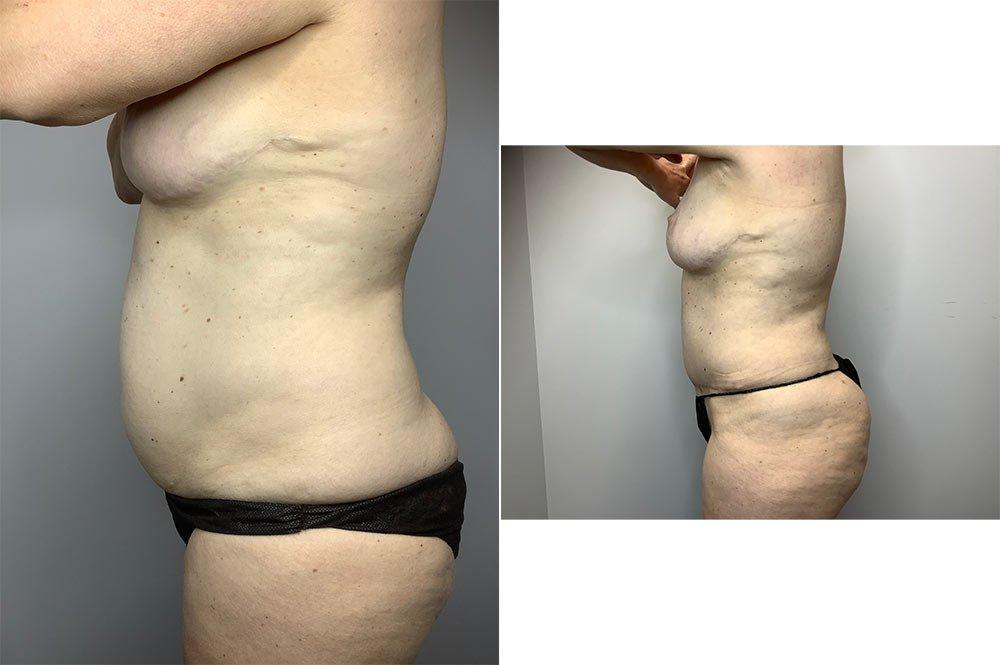 Abdominoplasty Case 4055-3