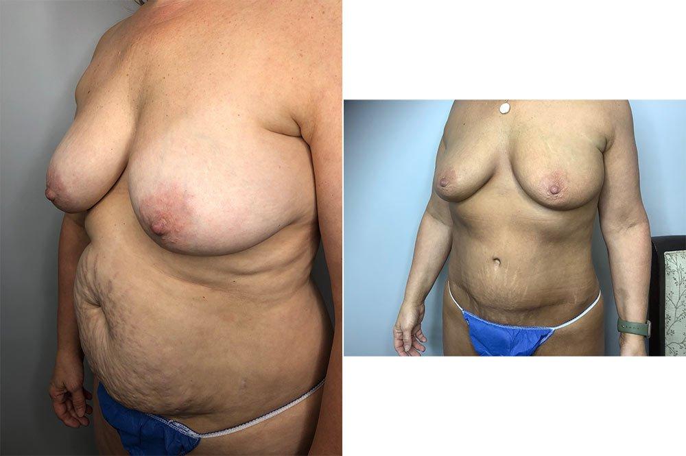 Abdominoplasty Case 5730-1