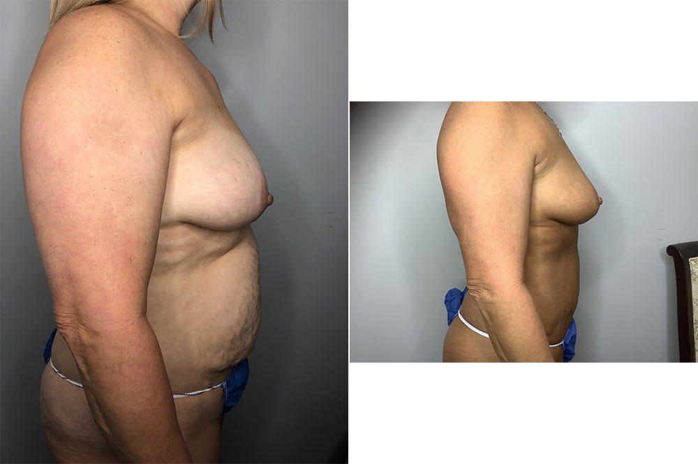 Abdominoplasty Case 5730-2