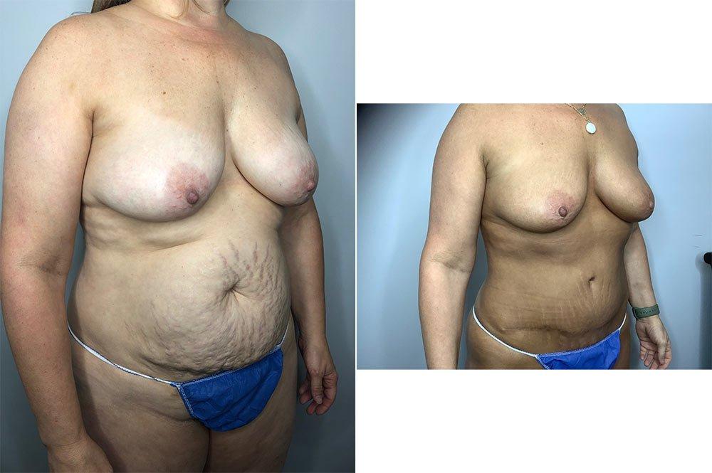 Abdominoplasty Case 5730-3