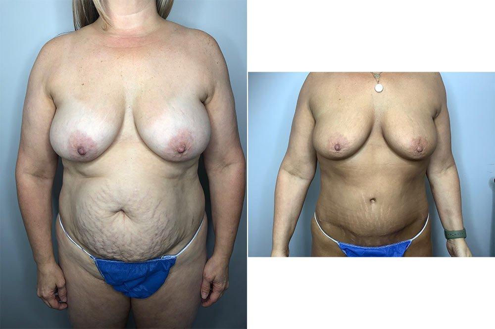 Abdominoplasty Case 5730-4
