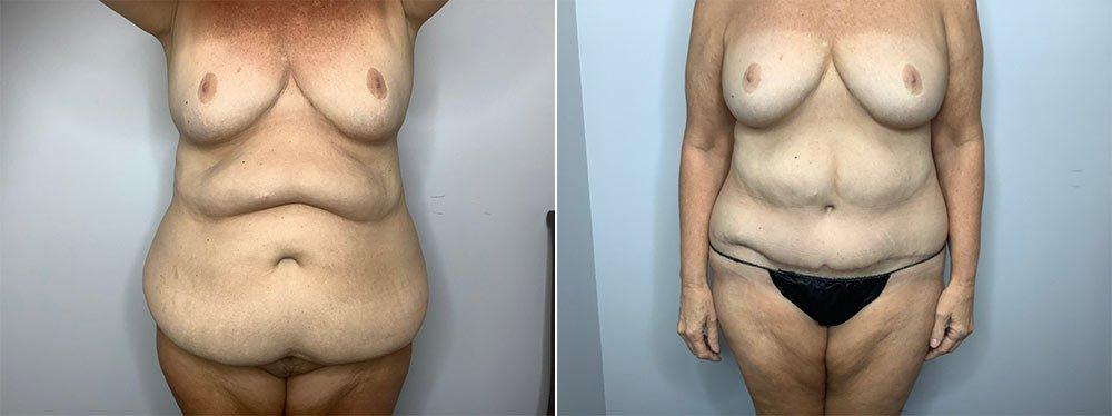 Abdominoplasty Case 9568-1