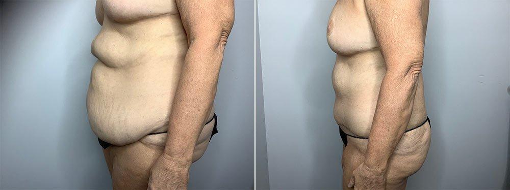 Abdominoplasty Case 9568-2
