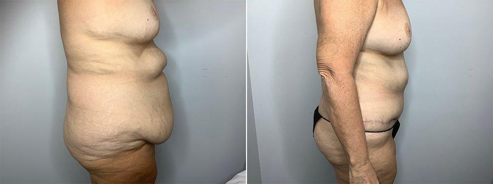 Abdominoplasty Case 9568-3