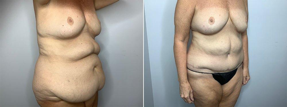 Abdominoplasty Case 9568-4