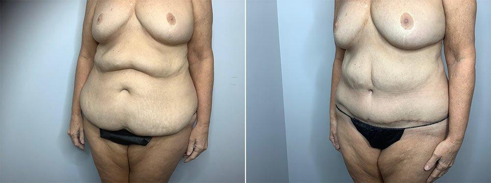 Abdominoplasty Case 9568-5