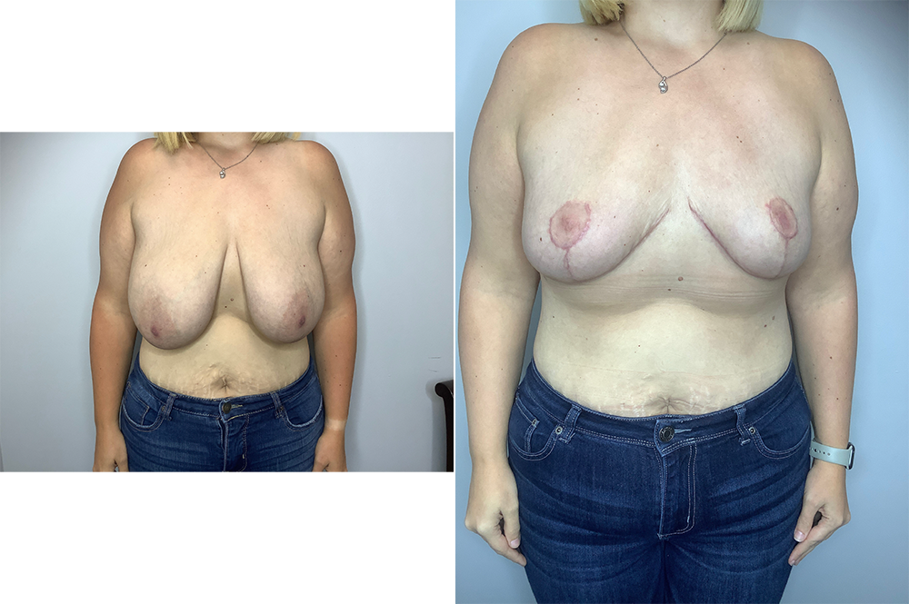 Breast Reduction Case 11191-3