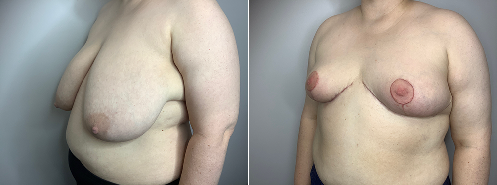 Breast Reduction Case 11192-1