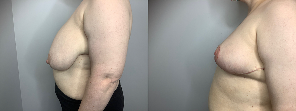 Breast Reduction Case 11192-3