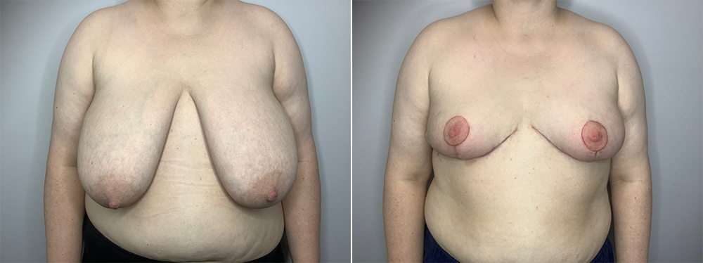 Breast Reduction Case 11192-5