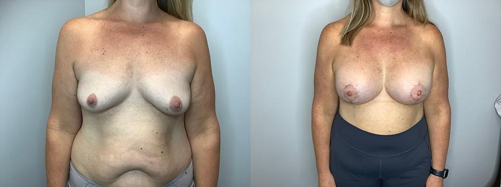 Implants and Mastopexy Case 11235-4