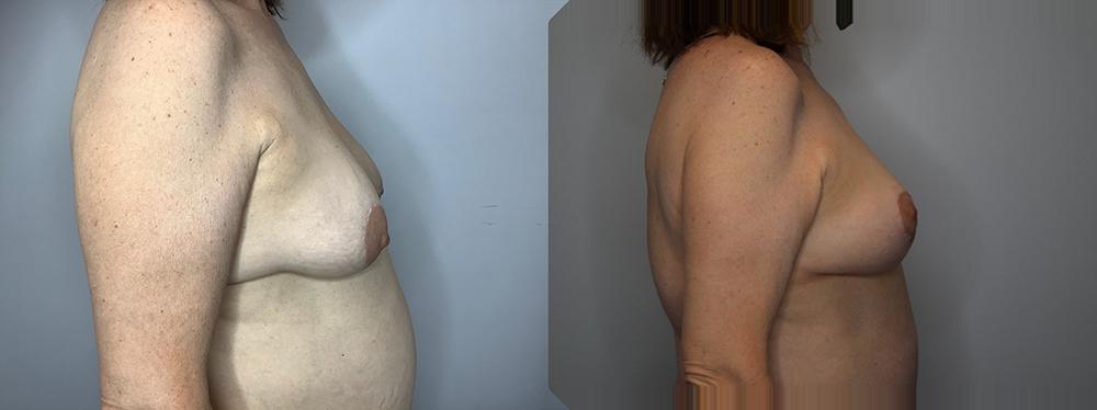 Mommy Makeover Case 11266-4