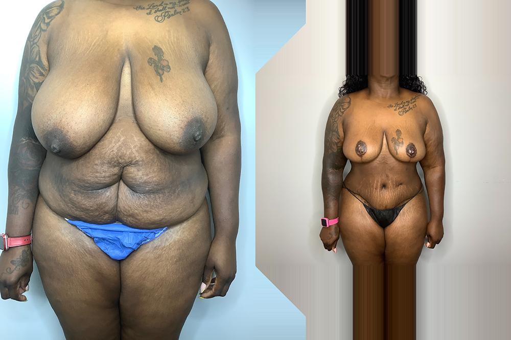 Mommy Makeover Case 11293-3