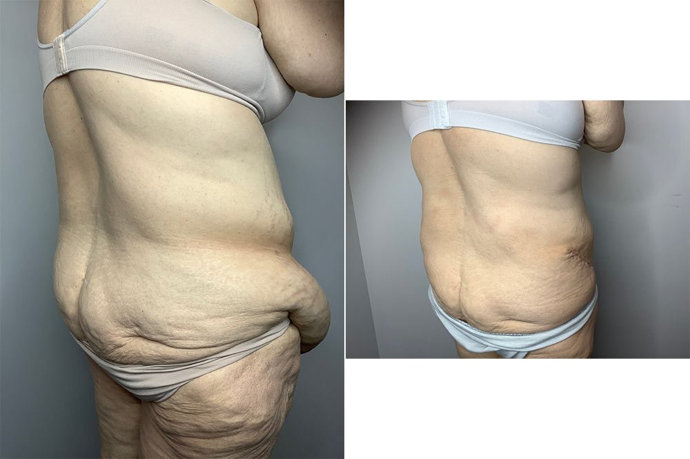 Panniculectomy Case 11034-5