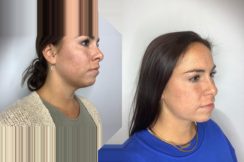 Submental Liposuction Case 10724-1